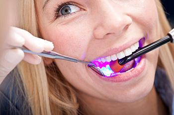 Zahnarzt Brühl wie wir arbeiten